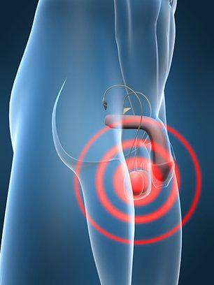 Лечение рака яичка в ведущих центрах и клиниках Израиля
