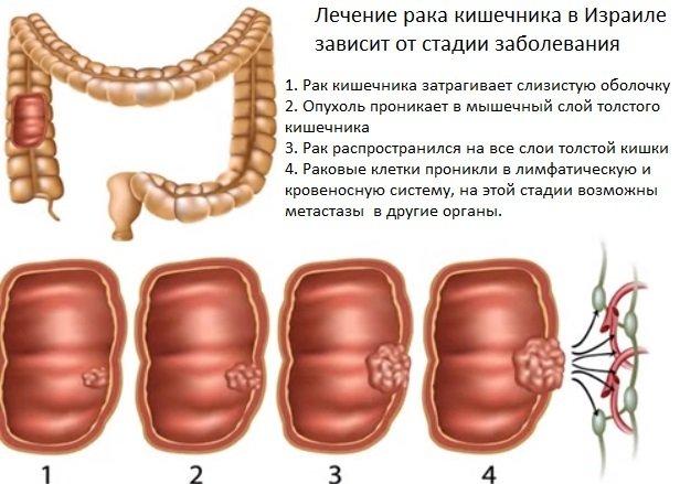 Лечение рака кишечника в ведущих центрах и клиниках Израиля