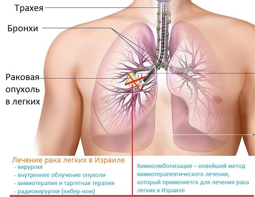 Лечение рака легких в ведущих центрах и клиниках Израиля