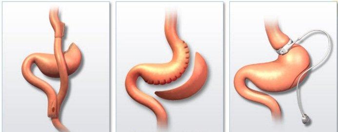 Бариатрическая хирургия в Турции, цены клиник, отзывы - DocLand