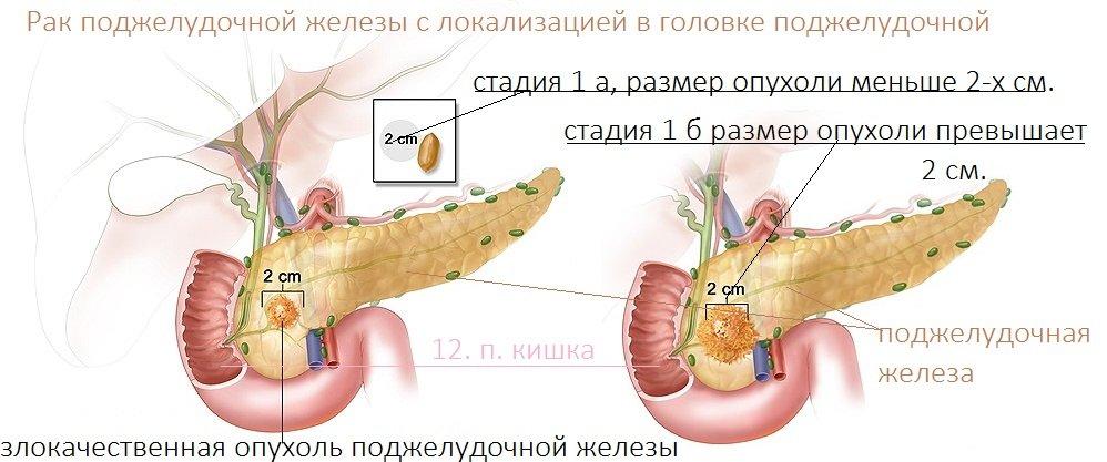 Кто как лечил рак головки поджелудочной железы