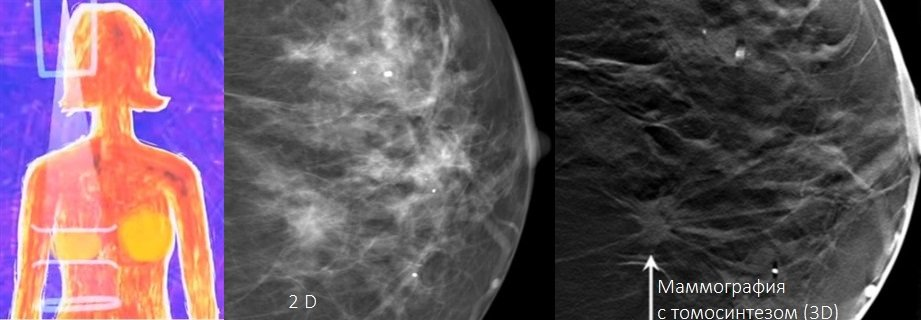 Лечение рака груди в клиниках города Бангкок